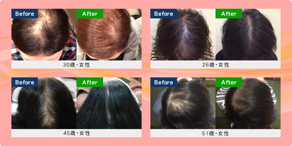 女性の発毛実績